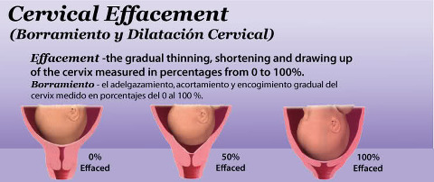 Your cervix before and during delivery gabrielle orcutt effacement stages of the cervix birth infographic ccuart Gallery